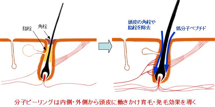 分子ピーリングは内側・外側から頭皮に働きかけ育毛・発毛効果を導く