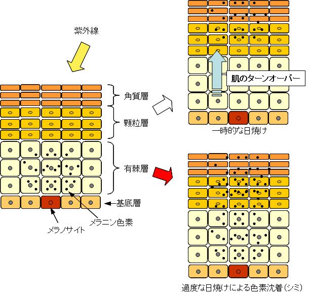 シミ発生のメカニズム:一時的な日焼けと過度な日焼けによる色素沈着(シミ)